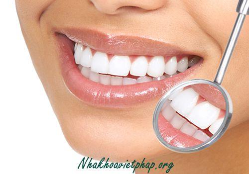 Bọc răng sứ cho răng cửa – Loại nào tốt nhất