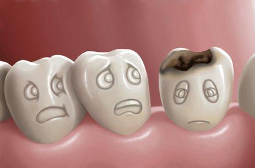 Hình ảnh tượng trưng cho bệnh sâu răng
