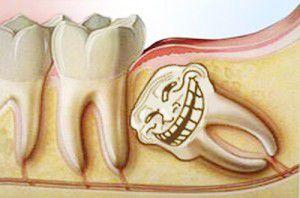 Răng khôn mọc lệch gây đau nhức ảnh hưởng đến sức khỏe răng miệng và toàn thân
