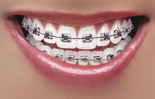 Những loại khí cụ hổ trợ cho niềng răng bằng mắc cài