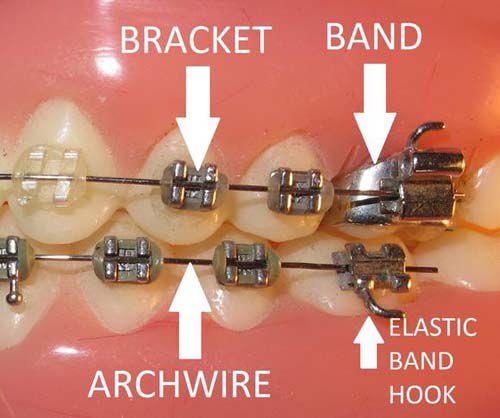 Những loại khí cụ hỗ trợ cho niềng răng bằng mắc cài
