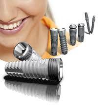 Cách chăm sóc răng implant như thế nào?