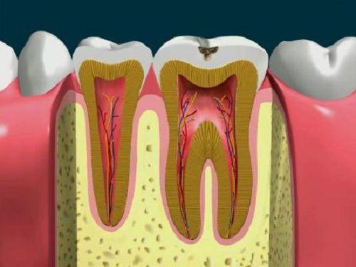 Có cần lấy tủy khi trám răng không?