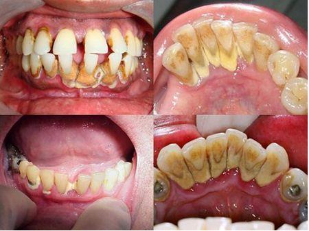 Cạo vôi răng là gì ?