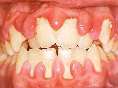 Cạo vôi răng có cần thiết không?