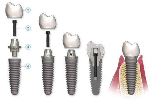 Cấy ghép implant có đắt không?