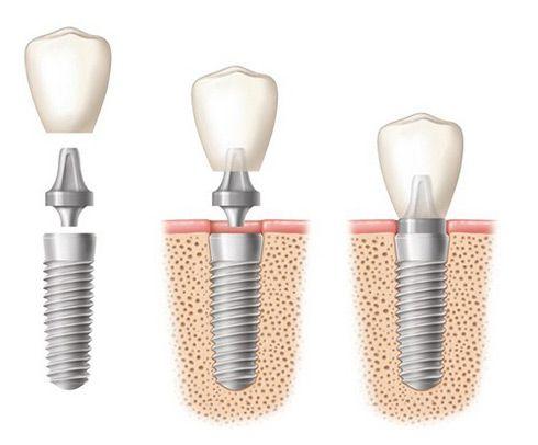 Cấy ghép implant có đắt không ?