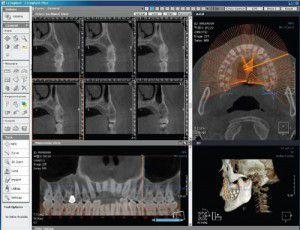 Implant và sức khỏe