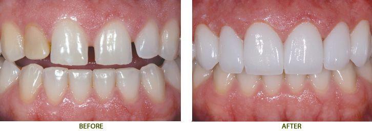 Khi nào nên làm răng sứ thẩm mỹ