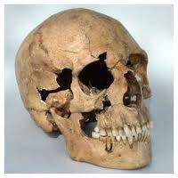 Lịch sử cấy ghép implant