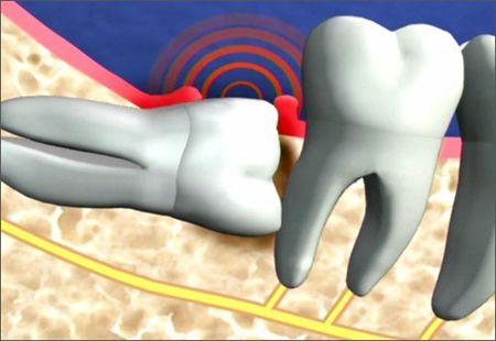 Nhổ răng như thế nào?