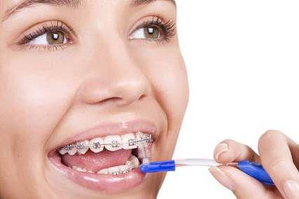 Những chú ý sau khi mang niềng răng