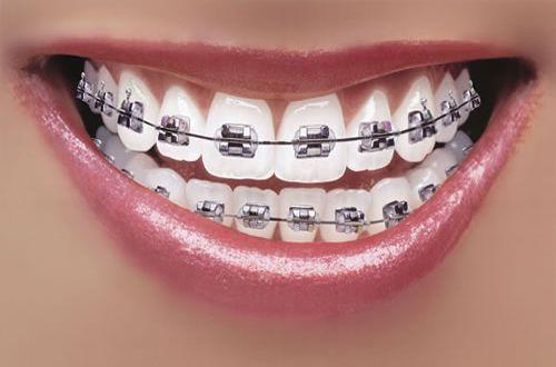Những điều cần biết khi niềng răng.