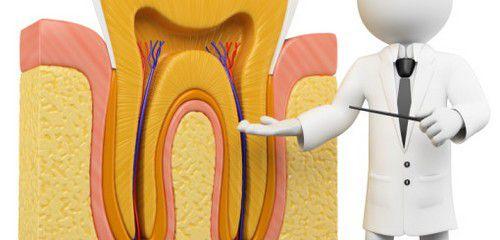 Những trường hợp cần lấy tủy răng