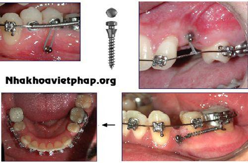 Niềng răng hô có cần nhổ răng ?
