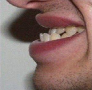 Niềng răng móm