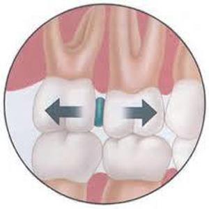 Quá trình niềng răng tại Nha khoa Việt Pháp