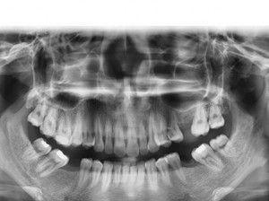 Quy trình điều trị implant