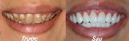 Răng nhiễm màu Tetracycline