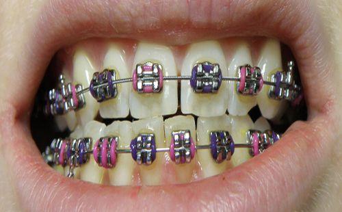 Răng thưa có nên bọc sứ không?