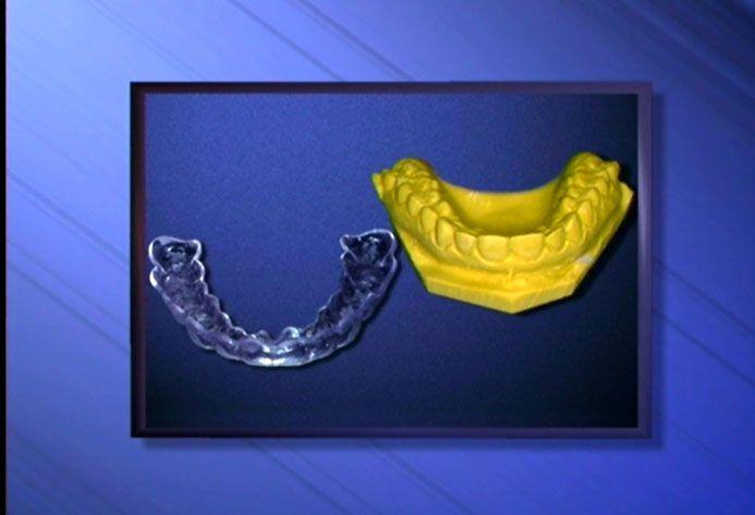 Tẩy trắng răng ở đâu tốt nhất?