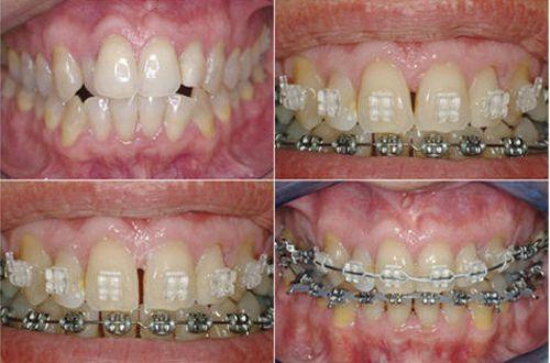 Mang mắc cài giúp răng đều, chạy đúng vị trí.