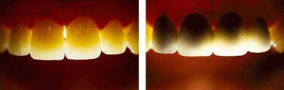 Trồng răng sứ cercon