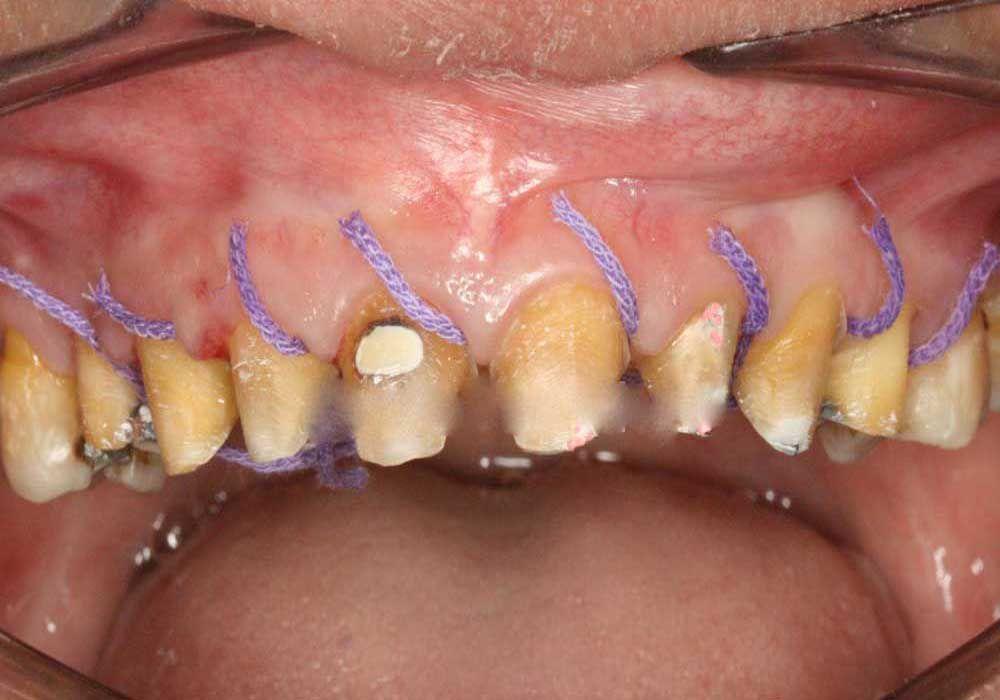 Trồng răng sứ Titan