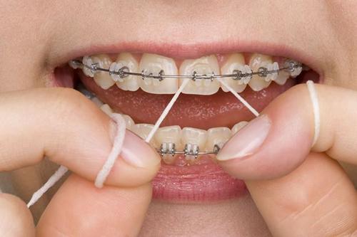 Ăn gì khi niềng răng ?