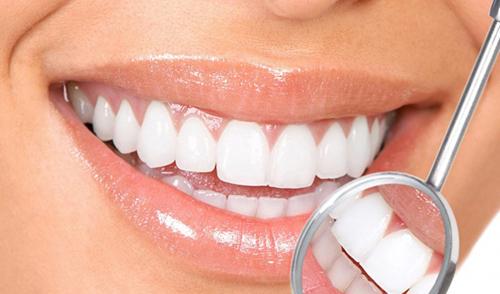 Bạn đã chăm sóc răng miệng đúng cách?