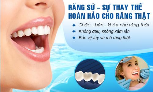Bảng giá răng sứ cao cấp