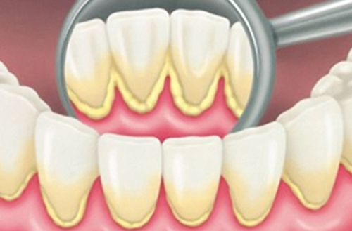 Bị chảy máu chân răng thường xuyên phải làm sao?