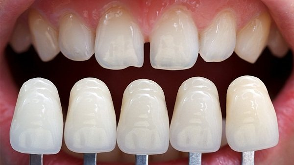 Bọc răng sứ cho răng cửa như thế nào?