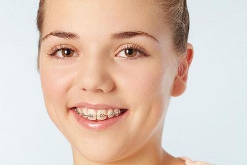 Bọc răng sứ có niềng răng được không ?