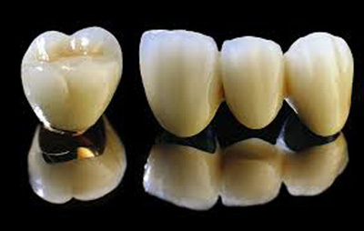 Bọc răng sứ giá bao nhiêu ?