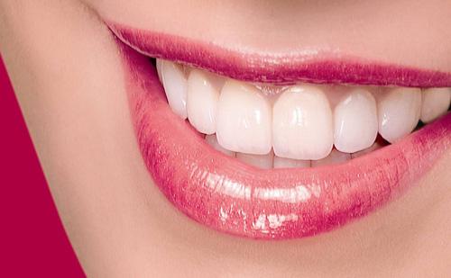 Bọc răng sứ titan có ưu và nhược điểm gì ?Bọc răng sứ titan có ưu và nhược điểm gì ?
