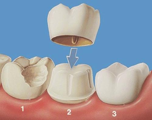 Bọc răng sứ titan giá bao nhiêu ?