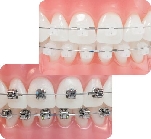 Các loại phương pháp niềng răng hiện nay