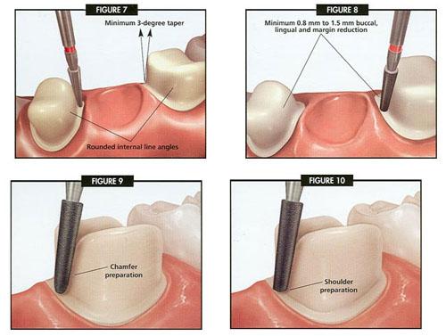 Các loại răng sứ thẩm mỹ cao cấp hiện nay