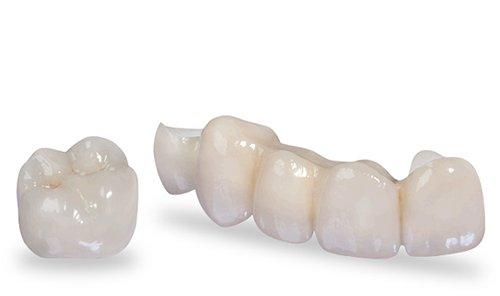 Các loại răng sứ thẩm mỹ cao cấp