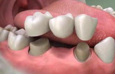 Cách chăm sóc răng giả