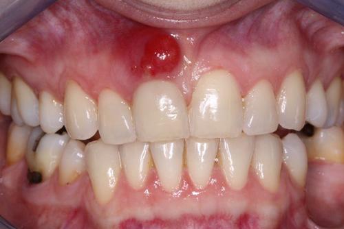 Cách chữa viêm chân răng có mủ hiệu quả