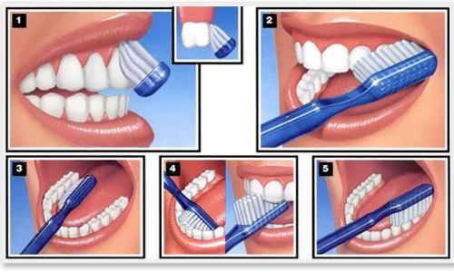 Cách điều trị khi bị sưng nướu răng