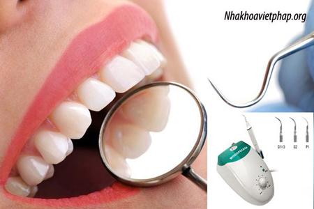 Cạo vôi răng có ảnh hưởng gì không ?