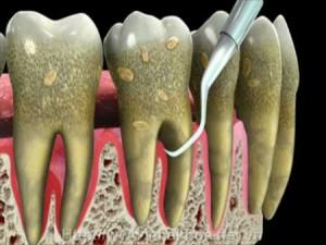 Cạo vôi răng có bị chảy máu không ?
