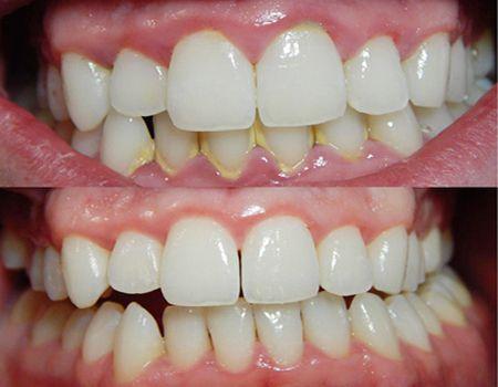 Cạo vôi răng có làm tổn hại men răng ?