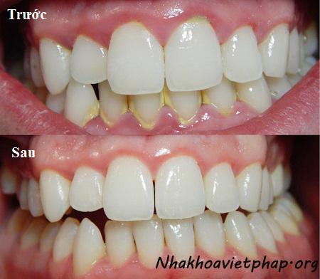 Cạo vôi răng có lợi hay hại ?