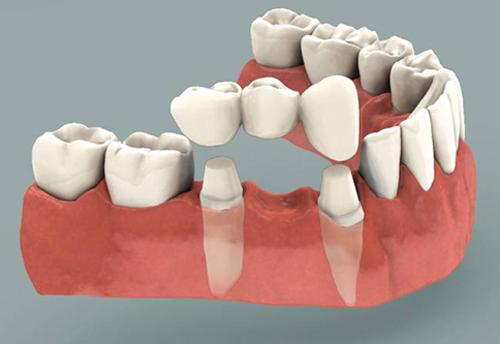 Cầu răng sứ không ngăn chặn tình trạng tiêu xương tại vì sao?