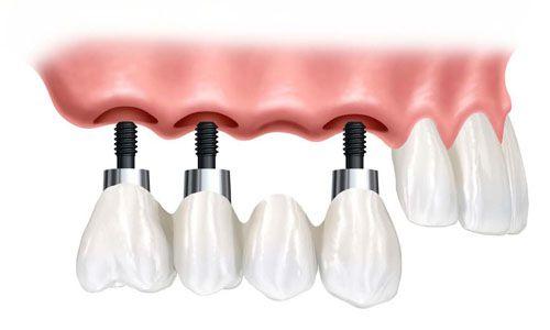 Cấy ghép impalnt khi bị mất một răng cửa