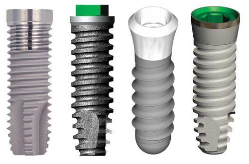 Implant là một trụ titan được cấy thẳng vào xương hàm thay thế cho chân răng đã mất.